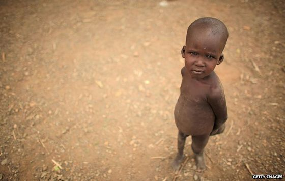 _68212467_hunger-boy